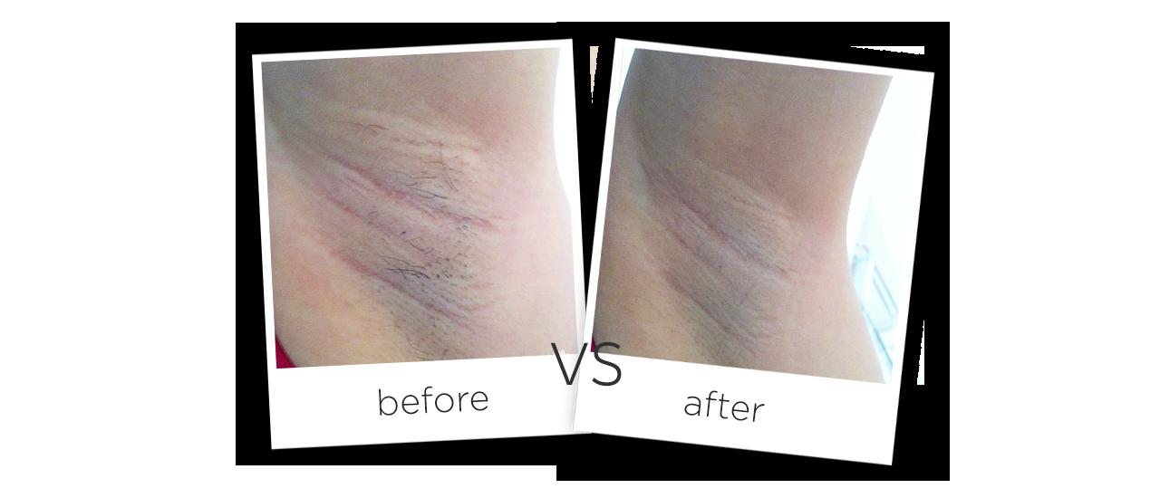 Аппарат волоконный лазер для удаления волос До и после сравнения