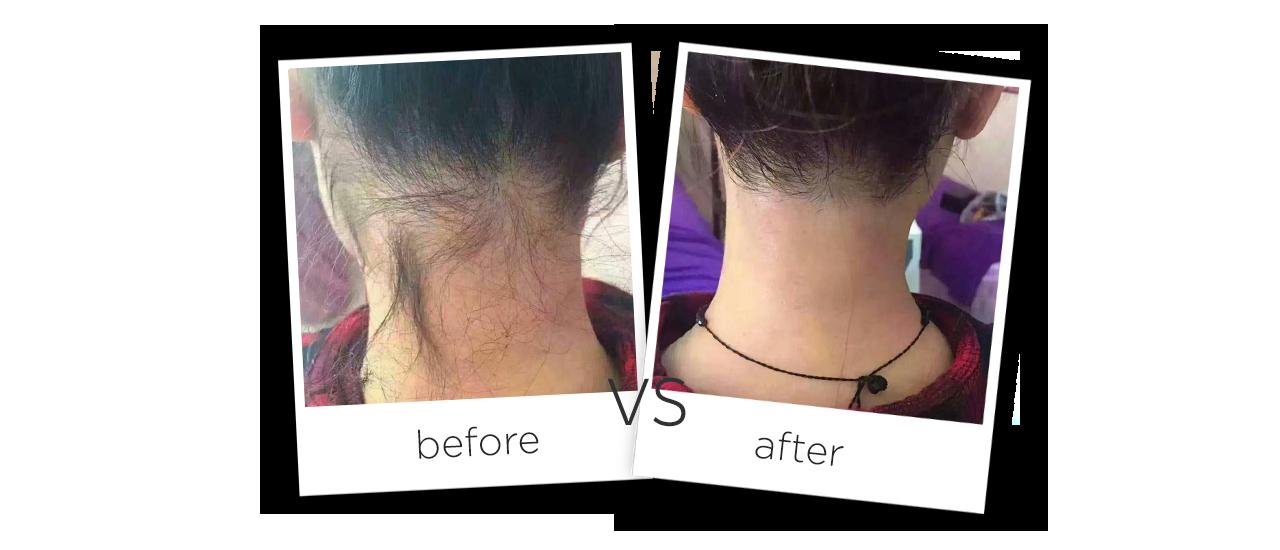 Аппарат волоконный лазер для удаления волос До и После